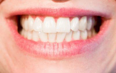 Obecna technologia wykorzystywana w salonach stomatologii estetycznej może spowodować, że odbierzemy śliczny uśmiech.